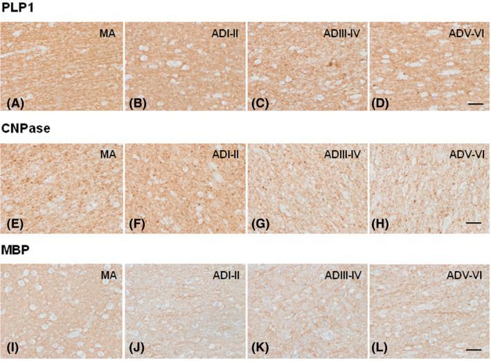 Immunohistochemistry to myelin markers PLP1, CNPase and MBP in the centrum semi‐ovale of the frontal lobe in MA ( A , E , I ), and in cases with AD without co‐morbidities at stages ADI–II/0‐A (ADI–II) ( B , F , J ), ADIII–IV/0‐C (ADIII–IV) ( C , G , K ) and ADV–VI/B–C (ADV–VI) ( D , H , L ). Representative images show reduced immunoreactivity with disease progression, and small PLP1‐ and CNPase‐immunoreactive dots in ADV–VI. Paraffin sections, slightly counterstained with haematoxylin; bar = 50 µm.