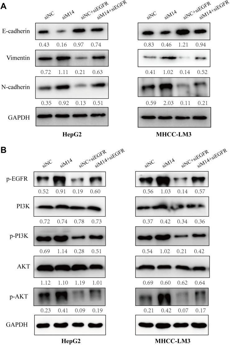 METTL14 inhibited the metastatic potential of HCC cells through regulating EGFR/PI3K/AKT signaling pathway. ( A ) Western blot analysis of the expression of EMT markers after siMETTL14 and siEGFR transfection. ( B ) Western blot analysis of the expression of p-EGFR, p-PI3K, and p-AKT after siMETTL14 and siEGFR transfection.