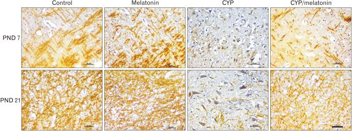 Expression of MBP in the medulla oblongata of the control, melatonin, CYP, CYP/melatonin groups at 7 and 21 PNDs. CYP administration dramatically downregulated the expression of MBP in rat medulla oblongata compared to the control group. Melatonin co-treatment significantly increased the expression of MBP. CYP, cypermethrin; MBP, <t>myelin</t> <t>basic</t> <t>protein;</t> PND, postnatal day. Scale bar=20 µm.