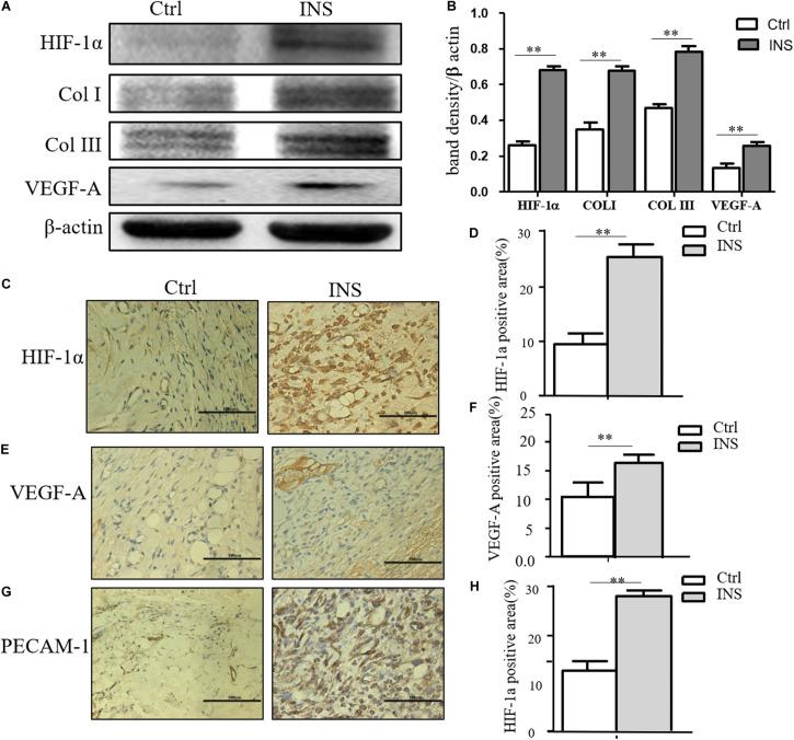 Insulin-containing SF microparticles promoted diabetic wound healing through HIF-1α stabilization. (A,B) Insulin-containing dressing promoted HIF-1α stabilization and its downstream protein expression. The expressions of HIF-1α and downstream protein Col I, Col III, and VEGF-A in wounds on the fifth day were analyzed using western blot, and Photoshop was used in the quantification of immunoblots. Data are shown as mean ± SD. ** p