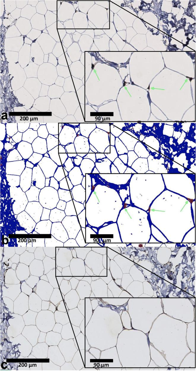 Serial sections of adipose tissue stained for <t>CD68</t> and GLUT4. CD68 + macrophage expression with immunohistochemistry ( a ). CD68 + positive macrophages are brown coloured (DAB) in a and detected using computerized morphometry (red coloured as depicted in panel b , negative cells depicted in blue). Green arrows indicate CD68 + macrophages. An algorithm was used to quantify the amount of infiltrating macrophages. GLUT4 expression is brown coloured on the cell surface of adipocytes ( c ).