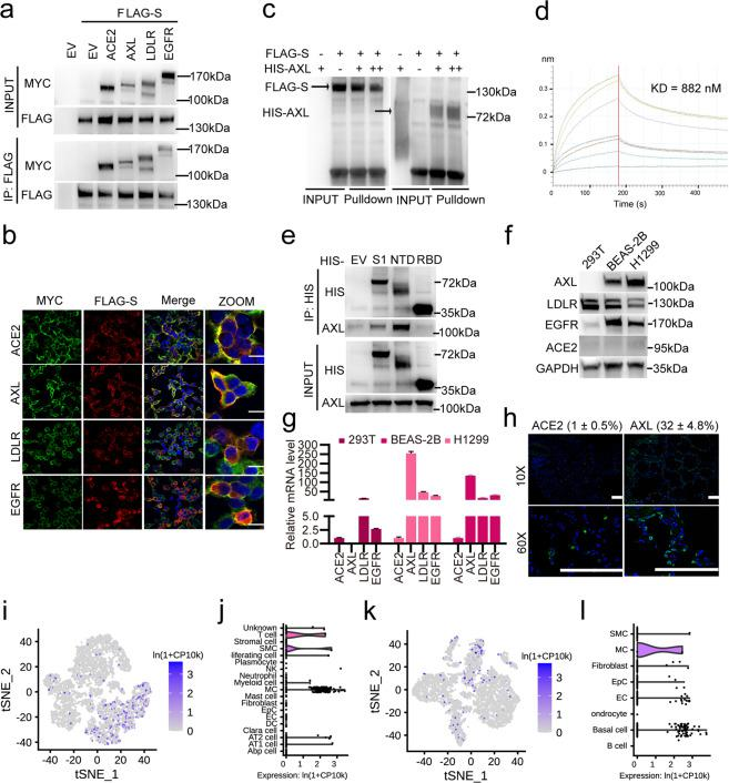 The SARS-CoV-2 S glycoprotein interacts with host AXL. a Validation of the interaction between SARS-CoV-2 S and ACE2, AXL, LDLR or EGFR. HEK293T cells were transfected with FLAG-tagged SARS-CoV-2 S and MYC-tagged ACE2, AXL, LDLR or EGFR for 24 h. The cells were lysed, and the lysates were incubated with FLAG-M2 resin; 5% lysate was used as the input control. Blots with antibodies recognizing the FLAG- or MYC-epitope tags are shown. b Co-localization assay of SARS-CoV-2 S and ACE2, AXL, LDLR or EGFR. HEK293T cells were transfected with the indicated constructs and subjected to immunofluorescence with an anti-FLAG antibody against SARS-CoV-2 S (red), an anti-MYC antibody against candidate receptors (green) and DAPI (blue) and visualized by microscopy. The scale bar indicates 15 μm. c In vitro pull-down assay of SARS-CoV-2 S and AXL. FLAG-tagged SARS-CoV-2 S and His-tagged AXL (amino acids 1–449) were expressed in HEK293T cells, affinity-purified, eluted and co-incubated for 1 h. Blots with antibodies recognizing the FLAG- or His-epitope tags are shown. d In vitro binding assay of SARS-CoV-2 S NTD and AXL. His-tagged SARS-CoV-2 S NTD and FLAG-tagged AXL were expressed in 293F cells, affinity-purified and eluted. The KD between His-tagged SARS-CoV-2 S NTD and FLAG-tagged AXL was measured using a BLI quantification assay. e Endogenous AXL interacts with the NTD of SARS-CoV-2 S. The in vitro-purified His-tagged SARS-CoV-2 S S1 domain, NTD and RBD were incubated with H1299 cell lysate and Ni-NTA resin; 5% lysate was used as the input control. Blots with antibodies recognizing endogenous AXL or His-epitope tags are shown. AXL is highly expressed in the H1299 and BEAS-2B cell lines. The expression of ACE2, AXL, LDLR and EGFR was examined in the HEK293T, H1299 and BEAS-2B cell lines by western blotting assay ( f ) and RT-qPCR ( g ). h AXL is highly expressed in human lung tissue. Human lung tissue sections were immunostained with antibodies against ACE2 or AXL (green) and wit