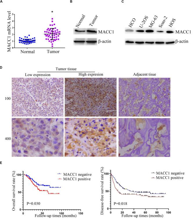 MACC1 is highly expressed in human osteosarcoma (OS) tissues and cell lines and its expression correlates with prognosis in OS patients. (A) Quantitative PCR assays were conducted to measure the MACC1 mRNA levels in OS tissues and the corresponding adjacent noncancerous tissues ( n = 30). (B) Immunoblot assays were conducted to detect the protein levels of MACC1 in OS tumor tissues and the corresponding adjacent noncancerous tissues. (C) Immunoblot assays were conducted to measure the protein levels of MACC1 in the U-2OS, MG-63, Saos-2, and HOS osteosarcoma cell lines, and normal human umbilical vein endothelial cells (HUVECs). (D) Immunohistochemistry was performed to measure the protein levels of MACC1 in human OS tissues and the corresponding adjacent noncancerous tissues; representative images are shown (×100 and ×400 magnification, respectively). (E) Kaplan–Meyer survival analysis showed the correlation between MACC1 expression in tumor tissues and overall survival or disease-free survival rates.