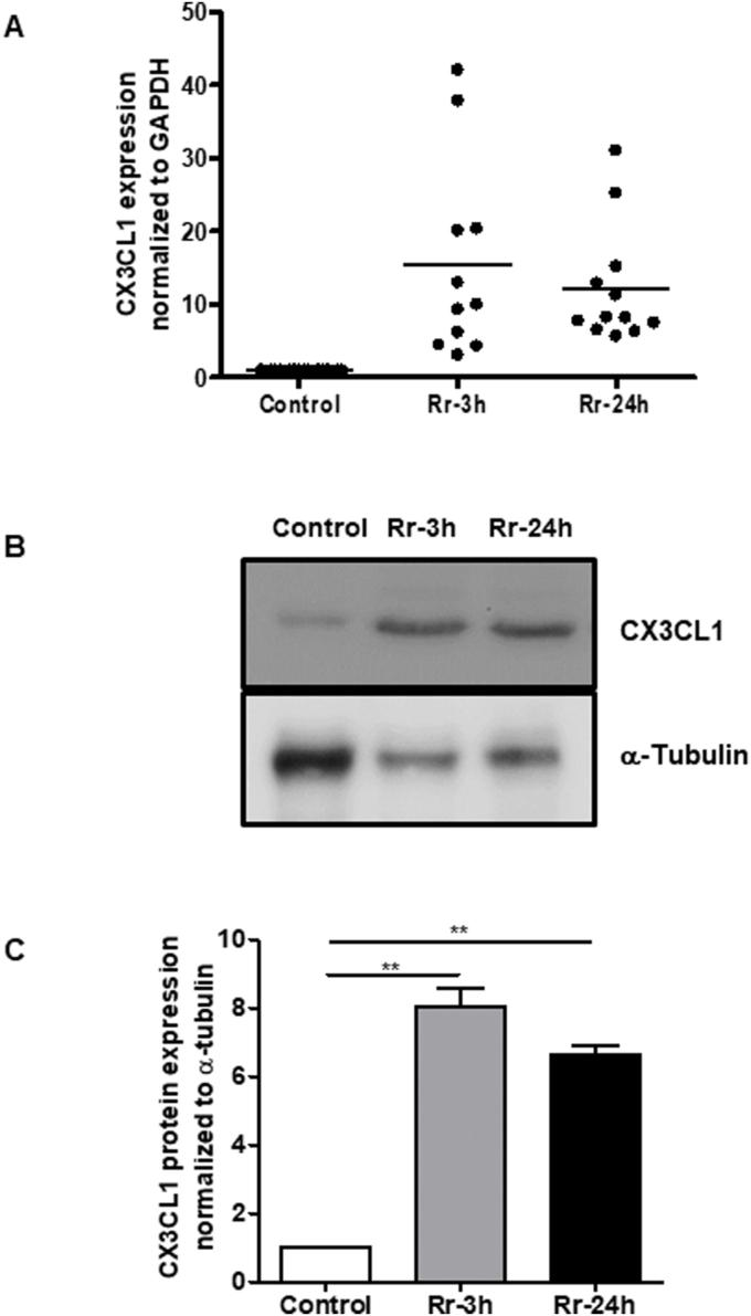 CX3CL1 expression in R. rickettsii infected endothelial cells. (A) Confluent HMECs were infected with R. rickettsii for 3 h or 24 h. At each time point post-infection, cells were lysed in Tri-Reagent for the extraction of total RNA, which was subjected to the analysis of Cx3cl1 mRNA expression by RT-qPCR using a gene-specific primer pair. (B) Total protein lysates from R. rickettsii -infected HMECs were prepared in RIPA buffer containing protease inhibitor cocktail and processed for Western blotting using an antibody against CX3CL1 to measure the levels of cellular protein expression. α-tubulin was used as a protein loading control. (C) Quantitation of CX3CL1 protein expression from three independent experiments is presented as the mean ± standard error. The asterisks indicate significant change (p
