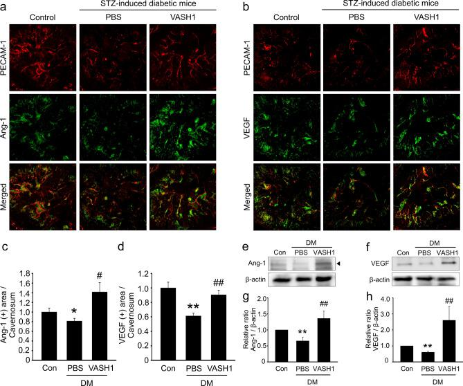 VASH1 protein transfer increases the cavernous expression of angiogenic factors in diabetic mice. ( a , b ) Angiopoietin-1 (Ang1, green) and PECAM1 (red), or vascular endothelial growth factor (VEGF, green) and PECAM-1 (red) staining in cavernous tissue from age-matched control and streptozotocin-induced diabetic mice 2 weeks after receiving repeated intracavernous injections of PBS (days − 3 and 0) or VASH1 protein (days − 3 and 0; 4 μg/20 μL). Scale bar = 100 µm. ( c , d ) Ang1 and VEGF-immunopositive areas were quantified by Image J. Each bar depicts the mean (± SE) values from N = 6 animals per group. * P