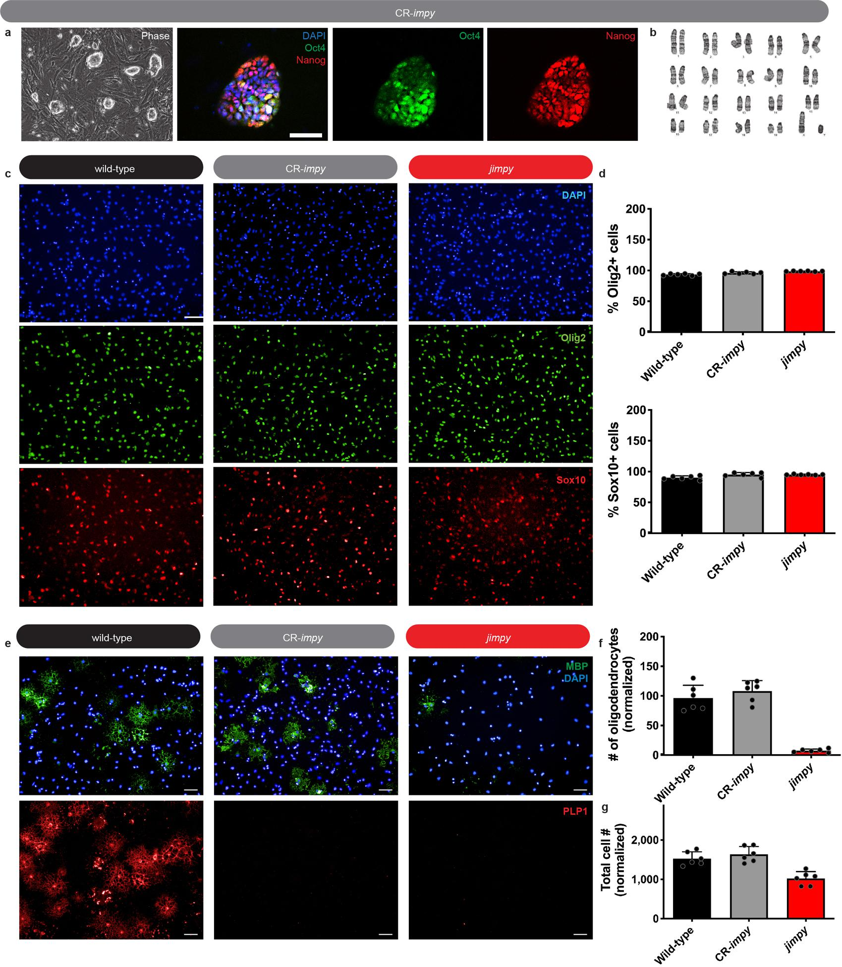 Plp1 suppression in jimpy OPCs rescues survival of differentiating oligodendrocytes in vitro . a , Phase and immunocytochemistry images of Oct4 + and Nanog + iPSCs, along with DAPI + nuclei and b , normal karyotype of a CR- impy iPSC line used to generate OPCs. Scale bar, 50μm. c , Immunocytochemistry images showing Olig2 + and Sox10 + cells in OPC cultures, along with DAPI + nuclei, derived from iPSCs. Scale bar, 100μm. d , Percentage of Sox10 + and Olig2 + cells in OPC cultures. e , Immunocytochemistry images of MBP + and PLP + oligodendrocytes. f-g , Quantification of ( f ) MBP + oligodendrocytes and ( g ) total cell number (DAPI + nuclei) from iPSC-derived OPCs differentiated in vitro for 3 days. Scale bar, 50μm. Technical replicates (individual wells) for a single cell line per genotype indicated by black circles. Graph bars indicate mean ± standard deviation.
