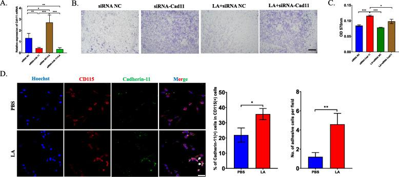 The overexpression of Cadherin-11 enhances the adhesion ability of osteoclast precursors. a RT-PCR analysis tested the mRNA level of Cadherin-11 in CD115(+) precursors to verify the efficiency of Cadherin-11 siRNA. b Transwell assay showed the mobility of CD115(+) precursors after transfected with Cadherin-11 siRNA or negative control in the presence of LA or not for 12 h. c The quantification of Transwell assay in ( b ) by using absorbency analysis. d Immunofluorescence analysis showed Cadherin-11 expression in CD115(+) precursors after treated by LA for 72 h (left), the percentage of Cadherin-11 and CD115 dual-positive cells in total cells was calculated (middle) and the quantification of adhesive CD115(+) precursors (right). * p