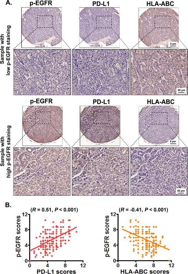 EGFR activation is positively correlated with PD‐L1 expression while negatively correlated with HLA‐ABC expression in HCC tissues. The expression of p‐EGFR, PD‐L1, and HLA‐ABC in HCC tissues was detected using immunohistochemistry. The average scores of p‐EGFR, PD‐L1, and HLA‐ABC expression in HCCs were analyzed by using a modified quickscore assessment method. (A) The representative images of PD‐L1 and HLA‐ABC expression in HCC samples with low and high p‐EGFR expression. (B) The correlation among p‐EGFR, PD‐L1, and HLA‐ABC expression in HCCs were analyzed by using Pearson's correlation coefficient. Abbreviations: EGFR, epidermal growth factor receptor; PD‐L1, programmed death‐ligand 1; HLA‐ABC, human leukocyte antigen class‐A, B, C; HCC, hepatocellular carcinoma.