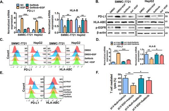 EGFR inhibitor gefitinib significantly abolishes EGFR activation‐induced PD‐L1 up‐regulation and HLA‐ABC down‐regulation in vitro and in vivo . SMMC‐7721 and HepG2 cells were pre‐treated with or without EGFR inhibitor gefitinib (10 μmol/L) for 6 h, and further co‐stimulated with or without EGF (20 ng/mL) for an additional 24 h. Then, cellular PD‐L1 and HLA‐ABC expression was measured by (A) qRT‐PCR, (B) Western blotting, and (C) flow cytometry. SMMC‐7721 cells with stable EGF expression (SMMC‐7721 pLV‐EGF ) and their control cells (SMMC‐7721 pLV‐null ) were previously established by infecting SMMC‐7721 cells using lentivirus with EGF expression vectors or empty vectors. Next, SMMC‐7721 pLV‐EGF and SMMC‐7721 pLV‐null cells were injected into the right flanks of nude mice to form xenograft tumors. When the tumor volume reached ∼100 mm 3 , tumor‐bearing mice were then treated with gefitinib (100 mg/kg) or 0.5% polysorbate vehicle once daily by oral administration (0.1 mL per 10 g body weight) for one week. Tumors were then collected, lysed, or digested for the detection of PD‐L1 and HLA‐ABC by (D) qRT‐PCR and (E) flow cytometry. SMMC‐7721 pLV‐EGF and SMMC‐7721 pLV‐null cells isolated from tumors treated with gefitinib or its vehicle were then co‐incubated with CD8 + T cells, and the specific lysis of tumor cells was detected 6 h later (F). * P ≤ 0.05, ** P ≤ 0.01, *** P ≤ 0.001. Abbreviations: EGFR, epidermal growth factor receptor; EGF, epidermal growth factor; PD‐L1, programmed death‐ligand 1; HLA‐ABC, human leukocyte antigen class‐A, B, C.