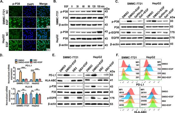 P38 MAPK mediates EGFR activation‐induced PD‐L1 up‐regulation and HLA‐ABC down‐regulation . (A) SMMC‐7721 cells were stimulated with EGF (20 ng/mL) for 12 h, then cells were collected and p‐P38 expression was detected by immunofluorescence. Scale bars: 40 μm. (B) SMMC‐7721 and HepG2 cells were stimulated with EGF (20 ng/mL) for indicated time periods (0‐150 min), then, the cells were collected to detect total P38 and phosphorylated P38 (p‐P38) expression by Western blotting. (C) Cells pre‐treated with EGFR inhibitor gefitinib for 6 h were further co‐stimulated with EGF (20 ng/mL) for an additional 4 h, then, the cells were collected to detect p‐P38, P38, p‐EGFR, and EGFR expression by Western blotting. Cells pre‐treated with P38 inhibitor SB203580 (SB2, 10 μmol/L) for 6 h were further stimulated with EGF (20 ng/mL) for 24 h, then PD‐L1 and HLA‐B transcription was detected by (D) qRT‐PCR, and PD‐L1 and HLA‐ABC protein levels were measured by (E) Western blotting and (F) flow cytometry. * P ≤ 0.05, ** P ≤ 0.01, *** P ≤ 0.001. Abbreviations: EGFR, epidermal growth factor receptor; EGF, epidermal growth factor; PD‐L1, programmed death‐ligand 1; HLA‐ABC, human leukocyte antigen class‐A, B, C; MAPK, mitogen‐activated protein kinase.