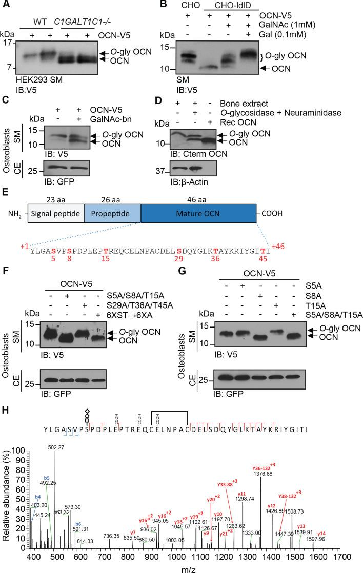 OCN is <t>O-glycosylated</t> in vitro <t>and</t> in vivo on serine 8. ( A ) Western blot analysis on the secretion medium (SM) of HEK293 (WT) and HEK293 lacking COSMC ( C1GALT1C1 -/-) transfected with mouse OCN-V5. ( B ) Western blot analysis on the SM of CHO and CHO-ldlD cells transfected with mouse OCN-V5. CHO-ldlD cells were treated or not with 0.1 mM Galactose (Gal) and/or 1 mM N-acetylgalactosamine (GalNAc). ( C ) Effect of N-acetylgalactosaminyltransferase (GalNAc-Ts) inhibition on mouse OCN O-glycosylation in osteoblasts. Western blot analysis on the SM and cell extract (CE) of primary osteoblasts transfected with mouse OCN-V5 and treated or not with 2 mM of GalNAc-bn. ( D ) OCN deglycosylation assay. Bone extracts of C57BL/6J mice were treated or not with <t>O-glycosidase</t> and <t>neuraminidase</t> for 4 hr at 37°C and analyzed by western blot using anti-C-termimal OCN antibody (Cterm OCN). β-actin was used as a loading control. Rec OCN: Non-glycosylated OCN produced in bacteria. ( E ) Structure of mouse pre-pro-OCN and amino acid sequence of mature mouse OCN. The serine ( S ) and threonine ( S ) residues are in red. ( F ) Western blot analysis on the SM and cell extract (CE) of primary osteoblasts transfected with OCN-V5 containing or not the indicated mutations. In the 6XST→6XA mutant, all six serine and threonine residues from OCN were mutated to alanine. ( G ) Western blot analysis on the SM and cell extract (CE) of primary osteoblasts transfected with OCN-V5 containing or not the indicated mutations. ( H ) Annotated HCD MS/MS spectrum of a modified form of OCN (HexNAc-Hex-NANA + 3 Gla + S-S) pulled down from the bone homogenate of C57BL/6J mice. The precursor m/z value is 1180.95003 (M+5H) +5 and mass accuracy with the annotated OCN modified form is 4.6 ppm. In C , F and G , GFP co-expressed from OCN-V5 expression vector, was used as a loading control. Original western blot image from Figure 1A . Original western blot image from Figure 1B . Original w