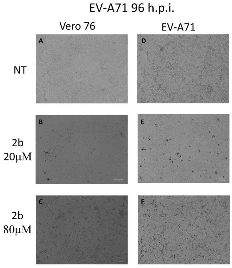 Effect of 2b inhibitor (20 and 80 µM) on the Vero-76-infected monolayers. Control ( A ), treated cells with 20 µM ( B ), treated cells with 80 µM ( C ), infected cells ( D ), infected treated cells (20 µM) ( E ), and infected treated cells (80 µM) ( F ). Pictures of cell morphology were taken at 72 h post-infection using ZOE Fluorescent cell imager (Bio-Rad) (bar size = 100 μm, magnification, 20×).