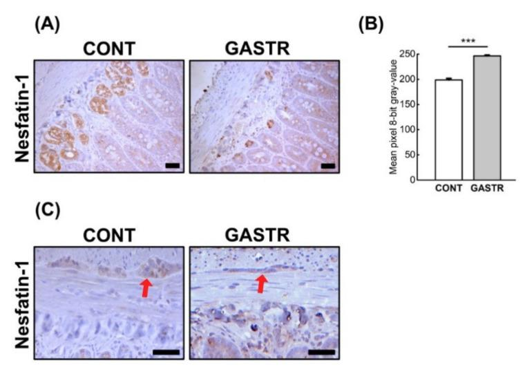 ( A ) Representative photomicrographs of the immunohistochemical reactions for nesfatin-1 in the jejunal crypts and ( C ) the Auerbach plexus (red arrow). Sections were developed in 3,3′-diaminobenzidine tetrahydrochloride (DAB); counterstaining was performed with Mayer's hematoxylin. All the scale bars represent 50 μm. ( B ) The intensity of expression of nesfatin-1 in the jejunum, measured by the quantitative assessment of mean pixel intensity values in the photomicrographs converted to 8-bit grayscale images. Scale from 0 (white pixel) to 255 (black pixel); the lower the pixel value, the higher the intensity of immunohistochemical reaction. Graph shows mean ± standard error. Significance was established using a two-tailed Student's t -test (normally distributed data), Welch's test (normally distributed data with unequal variances) or the Mann–Whitney test (for pairwise comparisons with at least one non-normally distributed dataset); *** p
