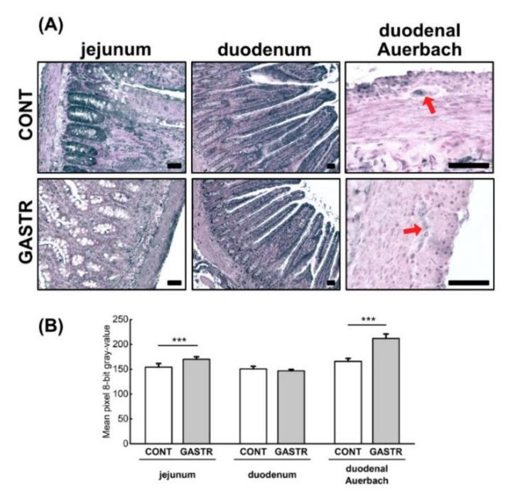 ( A ) Representative photomicrographs of the immunohistochemical reactions for ghrelin in the jejunum, duodenum and duodenal Auerbach plexus (red arrow). Sections developed in 3,3′-diaminobenzidine tetrahydrochloride with metal enhancer; counterstaining performed with Nuclear Fast Red. All the scale bars represent 100 μm. ( B ) The intensity of expression of ghrelin, measured by the comparison of the pixel brightness values in the microscopic images converted to 8-bit grayscale. Scale from 0 (white pixel) to 255 (black pixel); the lower the pixel value, the higher the intensity of immunohistochemical reaction. Graph shows mean ± standard error. Significance was established using a two-tailed Student's t -test (normally distributed data), Welch's test (normally distributed data with unequal variances) or the Mann–Whitney test (for pairwise comparisons with at least one non-normally distributed dataset); *** p