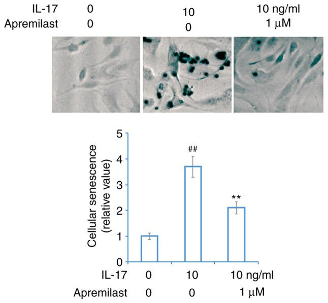 Apremilast prevents IL-17-induced cellular senescence in mouse ATDC5 chondrocytes. Cells were treated with IL-17 (10 ng/ml) in the presence or absence of apremilast (1 µ M) for 7 days. Cellular senescence was measured using SA-β-gal staining. ## P