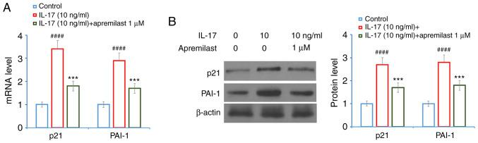 Apremilast prevents IL-17-induced expression of p21 and PAI-1 in mouse ATDC5 chondrocytes. Cells were treated with IL-17 (10 ng/ml) in the presence or absence of apremilast (1 µ M) for 24 h. (A) mRNA levels of p21 and PAI-1. (B) Protein levels of p21 and PAI-1 as measured by western blotting. #### P