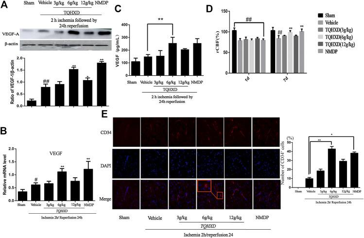 TQHXD strengthened angiogenesis in MCAO rats. (A) Representative band image (top) and quantitative analysis (bottom) of VEGF-A ( n = 3). (B) The mRNA expression of VEGF in cortex detected by qPCR. (C) Quantitative analysis for ELISA results of VEGF at 7 days. (D) The changes of rCBF for all groups at 1 and 7 d after reperfusion, n = 3. (E) Immunofluorescence of brain section. Angiogenesis was visualized by CD34 staining (red), and DNA was stained by 4′6,-diamidino-2-phenylindole (DAPI; blue). Red box implies zoom-in fluorescence. Right, the histograms indicate the percentages of CD34-expressing cells that were positive for indicated markers. Scale bar = 50 μm (×200 magnification). Data are presented as means ± SD. ## p