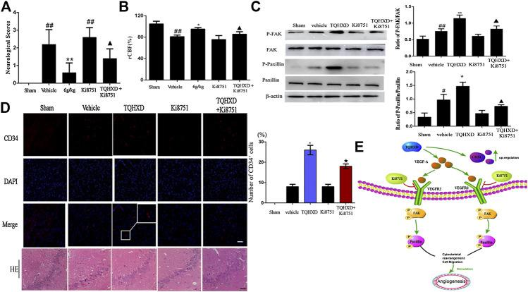 TQHXD enhanced I/R-induced angiogenesis via activation of VEGF-A/VEGFR2-FAK-Paxillin signaling. (A) Neurological scores measured by Longa's method ( n = 5). (B) The changes of rCBF for all groups at 7 days after reperfusion, n = 6. (C) Representative Western blot band (top) and quantitative analysis (bottom) of the expressions of FAK, p-FAK, Paxillin, and p-Paxillin ( n = 3). β-Actin was used as an internal reference. (D) Left, serial sections of the brain were subjected to hematoxylin and eosin (HE) staining, immunofluorescence for angiogenesis markers (CD34, red), and DNA was stained by 4′6-diamidino-2-phenylindole (DAPI; blue). White box implies zoom-in fluorescence. Right, the histograms indicate the percentages of CD34-positive cells. Scale bar = 50 μm (×200 magnification). White box implies zoom-in fluorescence. (E) The model illustrates the molecular mechanism of TQHXD on angiogenesis in MCAO injury rats. Data were expressed as mean ± SD. ## p