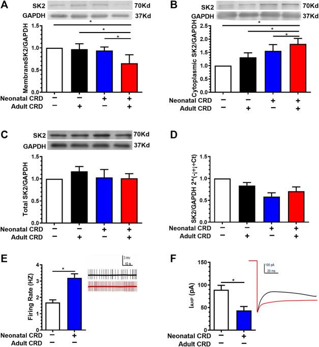 Membrane SK2 channel protein and IAHP were decreased in rats undergoing neonatal CRD. (A) Western blotting data revealed that the PVN SK2 channel protein in membrane fraction was decreased in rats undergoing neonatal and adult CRD vs. rats undergoing adult CRD alone (n = 6 rats each, F 3,20 = 17.25, p