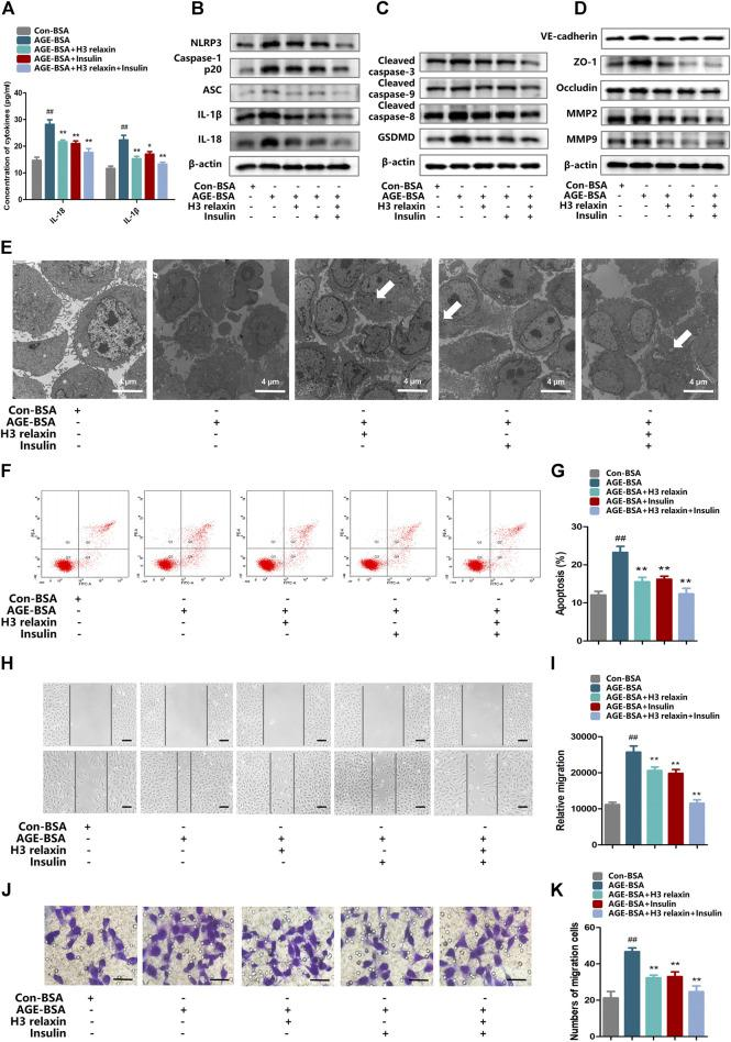 H3 relaxin alleviated NLRP3 inflammasome activation, apoptosis, pyroptosis and migration in hRMECs. (A) The protein levels of IL-1β and IL-18 in cell culture media. (B) The protein expression of NLRP3 inflammasome and inflammatory cytolines were evaluated by western blot. (C) The protein expression of cleaved caspase-3, cleaved caspase-9, cleaved caspase-8 and GSDMD were evaluated by western blot. (D) The protein expression of VE-cadherin, ZO-1, occludin, MMP2 and MMP9 were evaluated by western blot. (E) The apoptosis in hRMECs were observed by transmission electron microscopy. (original magnification, ×5,000). Ultrastructural evaluation was performed: The majority of hRMECs treated by AGE-BSA showed apoptosis in early and middle phase. After H3 relaxin or/and insulin treatment, hRMECs were noticed improvement in early phase of apoptosis. Medullary corpuscles (arrow) can be noticed. (F,G) Cell apoptosis was measured by flow cytometry. (H,I) Wound-healing assay of hRMECs (Scale bar = 200 µm). (J,K) Transwell assay of hRMECs (Scale bar = 200 µm). Data are the means ± SD, and each measurement was repeated six times. ## p