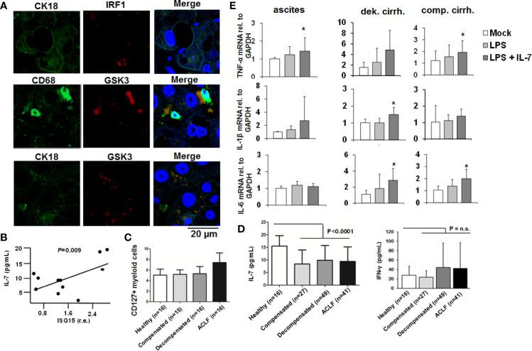 The IFN-IRF-1-IL-7 axis is present in patients with liver cirrhosis. (A) Presence of the proteins interferon-response factor-1 (IRF1), Glycogen synthase kinase-3 (GSK3), CD68 as a macrophage marker, and CK18 as part of the hepatocellular cytoskeleton was analyzed by immunofluorescence in paraffin-embedded tissue of a representative patient with liver cirrhosis. One out of two experiments (n=2) is shown as demonstration. (B) Interferon-stimulated gene (ISG)-15 relative to GAPDH mRNA concentration was quantified by quantitative PCR in (PBMCs of 11 randomly selected patients with liver cirrhosis from (C) and correlated with serum concentrations of interleukin-7 (IL-7). P value for Pearson correlation. (C) Flow cytometric analyses of the percentage of CD127 positive myeloid cells relative to all myeloid cells from patients with liver cirrhosis and available PBMCs or healthy controls. (D) Serum concentrations of IL-7 and interferon-(IFN)-γ in healthy controls and in patients with different liver cirrhosis stages or with acute-on-chronic liver failure (ACLF) were determined by ELISA. P for comparison between healthy controls and all patients with liver cirrhosis. (E) Monocytes from peripheral blood and ascites-derived macrophages of patients with ascites (n=4), compensated liver cirrhosis (n=4) and decompensated liver cirrhosis (n=4, all measured in duplicate) were stimulated ex vivo with 10 ng/ml IL-7 and/or 10 ng/ml LPS, as indicated, for 6 h. Then, quantitative analysis of mRNA of IL-1β, IL-6, and tumor necrosis factor α (TNFα) levels relative to housekeeping GAPDH mRNA was performed. * P