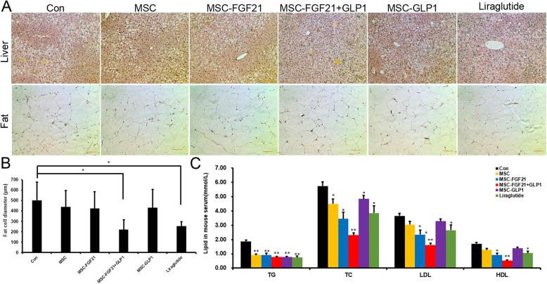 FGF21- and GLP1-modified MSCs could improve lipid metabolism in T2DM mice. a Hematoxylin and eosin staining of representative liver and adipose sections obtained from mice from the indicated groups (scale bars = 100 mm). b Statistics on the diameter of fat cells, * P