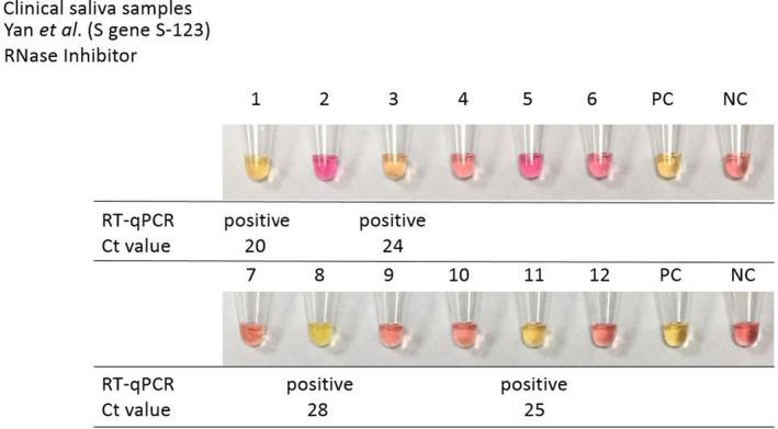 The RT‐LAMP on clinical saliva samples performed with Yan et al . (S‐123) primer mix and <t>RNase</t> inhibitor. Yellow colour – positive result – presence of <t>RNA,</t> pink colour – negative result – absence of RNA. PC, positive control; NC, negative control.