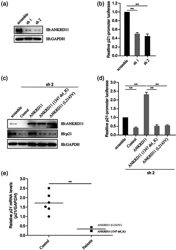 The variants of <t>ANKRD11</t> attenuate p21 . (a) Knockdown efficiency of shRNAs for ANKRD11 by immunoblotting. HEK293T cells were transfected with shRNAs (scramble, sh1 or sh2) for ANKRD11, and the protein levels of ANKRD11 and GAPDH were detected by immunoblotting. Sh1 and sh2 reduced the expression of ANKRD11 protein, respectively. (b) Luciferase reporter assay to detect the relative activities of human p21‐ promoter. HEK293T cells were transfected with shRNAs for ANKRD11, as well as with p21‐ promoter luciferase reporter and PRL‐TK. The cell lysates subjected to Dual‐Luciferase Reporter assay 48 hrs later. Data are expressed as mean ± SD. ** p
