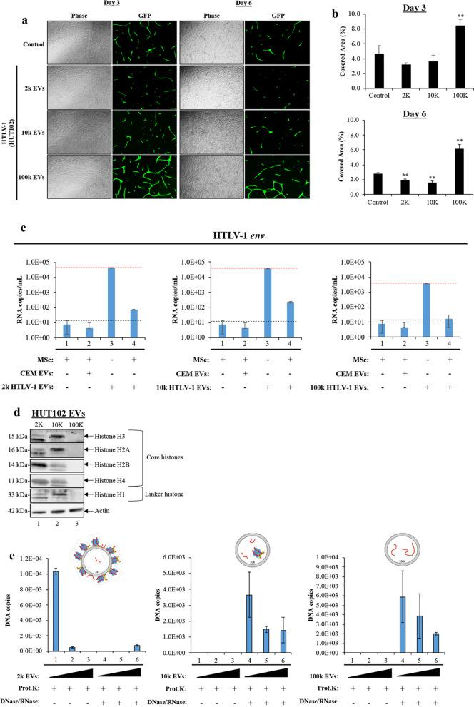 "Functional Effects of HTLV-1 EVs on Angiogenesis and Inflammation. a An angiogenesis assay in technical and biological triplicate was used to determine the effect of distinct HTLV-1 EVs (2 k, 10 k, and 100 k) on tubular formation in a co-culture of <t>mesenchymal</t> <t>stem</t> cells (MSCs) and aortic endothelial cells (AEC). EV-treated cells (1:2000 recipient <t>cell</t> to EV ratio). Positive control cells received complete, undiluted <t>medium.</t> Additional dose of EV treatment was given to the cells at day 4. Representative images were taken at days 3 and 6 showing tubular formation in response to the indicated treatment. b The image processing software WIMASIS was used to calculate the percentage of area covered by tubules (n = 3) on day 3 and day 6. c RT-qPCR results showing env RNA copy numbers of mesenchymal stem cells treated with CEM EVs (control) and different populations of HTLV-1 EVs: 2 k (left panel), 10 k (middle panel), and 100 k (right panel). A set of dashed black vertical lines (---) were used to indicate baseline env RNA copy numbers. A set of dashed red vertical lines ( ) were used to indicate the levels of starting material, suggestive of the minimum env RNA copy numbers necessary for EVs to increase vial spread in MSc. d Western blot analysis for core histones (H3, H2A, H2B, and H4), linker histone (H1) and actin in HUT102 EVs (2 k, 10 k, and 100 k). e GAPDH DNA levels (representative of nucleosomes) in 2 k, 10 k, and 100 k HUT102 EVs treated with proteinase K and DNase/RNase were evaluated by was quantitated by q-PCR. A two-tailed student t-test was used to evaluate statistical significance with ""**"" for p-values ≤ 0.01, indicating the level of significance relative to untreated (Control) samples"