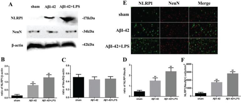 (A) Western blotting assay for detecting the expression of NLRP1 and NeuN. (B, C) Quantification of the expression of NLRP1 and NeuN. (D) NLRP1/NeuN ratio. (E) Immunofluorescence assay for detecting the expression of NLRP1 and NeuN (×400) and (F) NLRP1/NeuN (+) cells in samples from the sham, Aβ1-42, and Aβ1-42+LPS groups. Protein levels were normalized to those of β-actin (Aβ1-42 vs . sham group, ** p
