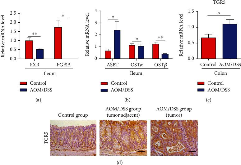 The expression of bile acid receptors in the colitis-associated cancer model. (a) The mRNA expression of ileum FXR and FGF15 was reduced in the AOM/DSS group. (b) Real-time PCR showed an increased expression of ASBT and a decreased level of OST α and OST β in the ileum of the AOM/DSS group. (c) The mRNA expression of colon TGR5 was elevated in the tumor of the AOM/DSS group by Real-time PCR. (d) Immunohistochemical staining showed higher expression of TGR5 in mice with AOM/DSS treatment than in the control group. ASBT: apical sodium-dependent bile acid transporter. OST α and OST β : organic solute transporter subunit α and β . Scale bars: 50 μ m. ∗ p