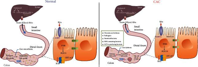Gut dysbiosis and abnormal bile acid metabolism in colitis-associated cancer. Synthesized in the liver, bile acids are transported to the intestine in the form of conjugated bile acids. In the distal ileum, most of them are reabsorbed and conveyed to the liver in the presence of the FXR-FGF15 axis and bile acid transport receptors. In the colon, the gut microbiota promotes bile acid deconjugation and the conversion of primary bile acids to secondary bile acids. After AOM/DSS treatment, the BSH containing bacteria is reduced. Thus, dysbiosis inhibits bile acid metabolism and induces decreased secondary bile acids. Considering the bile acid receptors, the expression of FXR-FGF15 axis, OST α , and OST β is decreased, while ASBT is increased, which limits the reabsorption of bile acids and leads to the accumulation of bile acids in enterocytes. The colon of the CAC model shows a severe inflammatory response, disrupted barrier function, and elevated expression of TGR5 in tumor tissues. BAs: bile acids; ASBT: apical sodium-dependent bile acid transporter; FXR: farnesoid X receptor; FGF15: fibroblast growth factor 15; TGR5: G-protein coupled receptor; OST α and OST β : organic solute transporter subunit α and β ; BSH: bile salt hydrolase; CAC: colitis-associated cancer; TJ: tight junction.