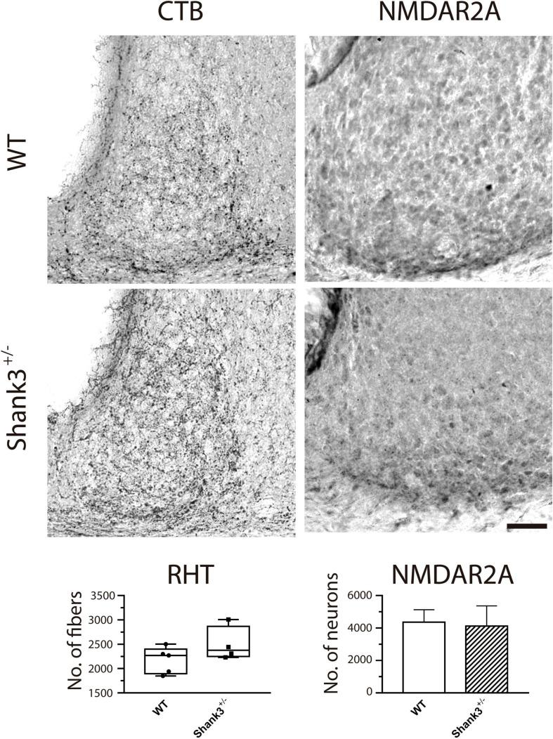 Immunostaining for cholera toxin β-subunit (CTB) and <t>NMDAR2A</t> in the suprachiasmatic nucleus (SCN) from wild-type (WT) and Shank3 +/– mice. CTB (diaminobenzidine, DAB, left column ) and NMDAR2A ( right column ) did not show obvious differences in the immunoreactivity between groups (WT, top micrographs ; Shank3 +/– , bottom micrographs ). For this and subsequent figures ( Figures 8 , 9 ), scale bar = 50 μm.
