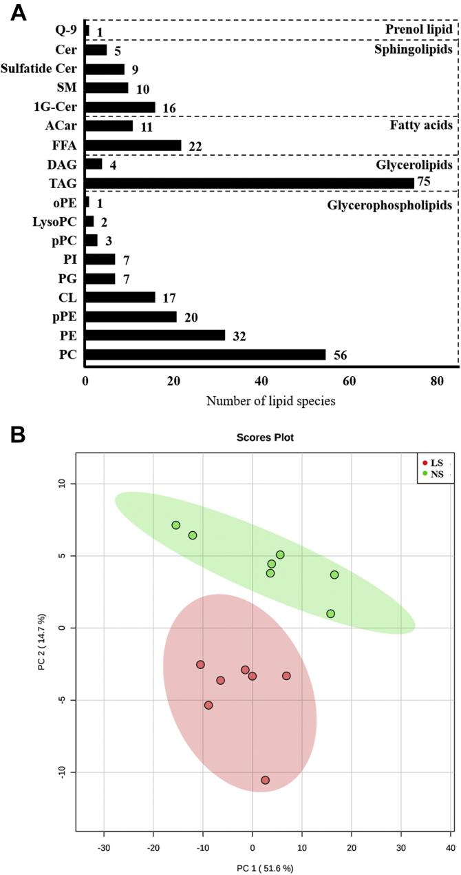 A , lipid species in gastrocnemius identified by global lipidomics. Number of lipid species by category identified in a global lipidomic analysis performed with high-resolution mass spectrometry, ultra-high-performance liquid chromatography coupled to mass spectrometry coupled to ESI-Q-TOF-MS in the lipid extract of gastrocnemius of LDLRKO mice after normal (NS; n = 7) or low-sodium diet (LS; n = 7). 1G-Cer, glycosyl ceramide; AC, acylcarnitine; Cer, ceramide; CL, cardiolipins; DG, diacylglycerol; FFA, free fatty acids; oPE, alkylsulfatylethylethanolamine; PC, phosphatidylcholine; PE, phosphatidylethanolamine; PG, phosphatidylglycerol; PI, phosphatidylinositol; pPC, plasmenyl diacylphosphatidylcholine; pPE, plasmenyl phosphattidylethanolamine; Q-9, coenzyme Q9; SM, sphingomyelin; TG, triacylglycerol. B , discriminant analysis by partial least squares (PLS-DA) of lipids in the gastrocnemius. The lipid extract of the gastrocnemius was subjected to a global lipid analysis performed with high-resolution mass spectrometry, ultra-high-performance liquid chromatography coupled to mass spectrometry coupled to ESI-Q-TOF-MS. The PLS-DA shows the separation of lipid species from LDLR KO male mice in NS ( green circles , n = 7) or LS ( red circles , n = 7) groups.