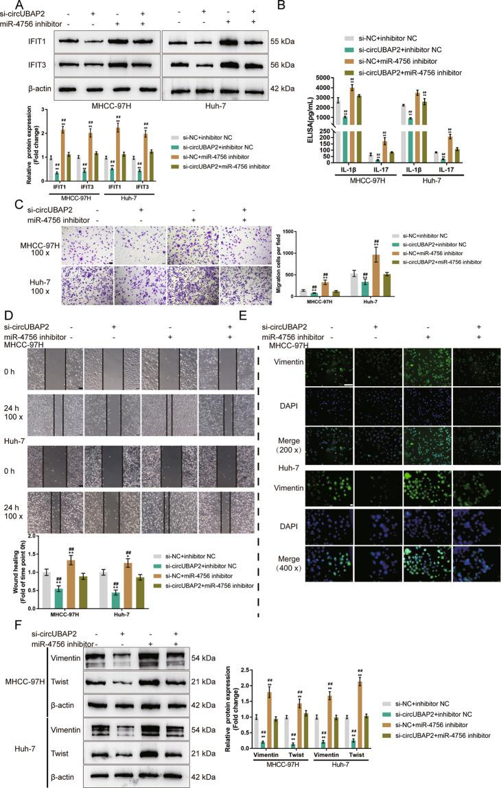 Combined effects—effects of circUBAP2 and miR-4756 on IFIT1/IFIT3 expression and HCC cell phenotype. MHCC-97H and Huh-7 cells were co-transfected with si-circUBAP2 and miR-4756 inhibitor and examined for A The protein levels of IFIT1 and IFIT3 by Immunoblotting; B The concentrations of IL-1β, and IL-17 in the culture medium by ELISA; C Cell migration by Transwell assay; D Cell migration by wound healing assay; E The cellular protein content and distribution of Vimentin was examined by IF staining; F The protein levels of Vimentin and Twist was examined by Immunoblotting. * P
