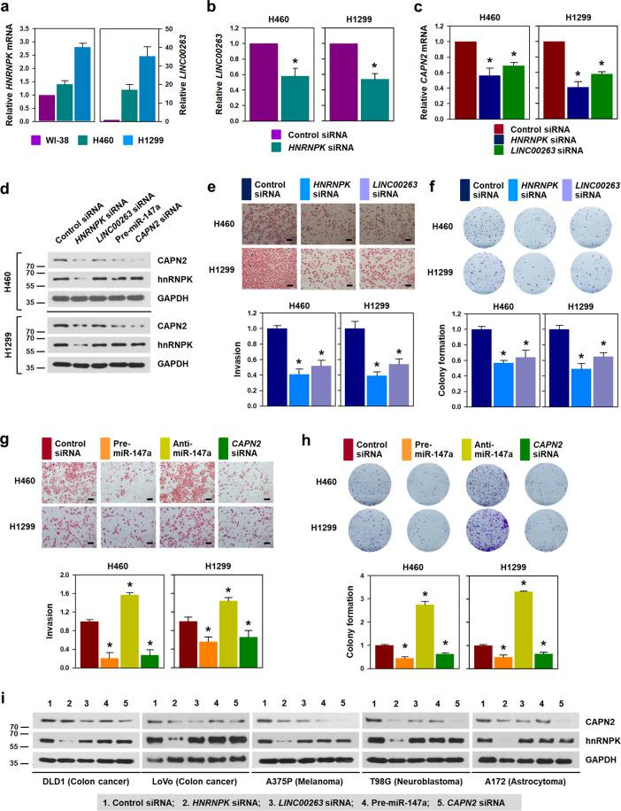 """hnRNPK/ LINC00263 /miR-147a/CAPN2 is a promising target for the development of cancer therapeutics. To expand our findings to various types of cancer, we checked whether the regulatory mechanism of hnRNPK/ LINC00263 /miR-147a/CAPN2 is applicable to various types of cancers. a The relationship between the expression of HNRNPK mRNA and LINC00263 was examined in lung cancer cells by comparing them to the levels in WI-38 cells. The levels of HNRNPK mRNA and LINC00263 in WI-38, H460, and H1299 were determined by RT-qPCR analysis. b To determine whether hnRNPK regulates LINC00263 , the level of LINC00263 was analyzed by RT-qPCR analysis in hnRNPK-silenced lung cancer cells. c Regulation of CAPN2 by hnRNPK and LINC00263 was verified by assessing the level of CAPN2 mRNA in hnRNPK- or LINC00263 -silenced lung cancer cells. d – h To examine whether hnRNPK/ LINC00263 /miR-147a/CAPN2 axis regulates the invasive and clonogenic abilities, H460 and H1299 cells were transfected with siRNA targeting HNRNPK mRNA or LINC00263 , or pre-miR-147a. The level of CAPN2 protein was determined by We stern blot analysis ( d ). Invasiveness ( e , g ) and colony-forming ability ( f , h ) were examined as described in """"Materials and methods"""". i The effect of hnRNPK/ LINC00263 /miR-147a on CAPN2 expression was evaluated in various cancer cells including DLD1, LoVo, A375P, T98G, and A172. The expression level of CAPN2 and hnRNPK were determined by Western blot analysis. Bars on microscopic images represent 100 μm. Statistical analyses were performed using the Student's t test using three independent experiments (* p"""