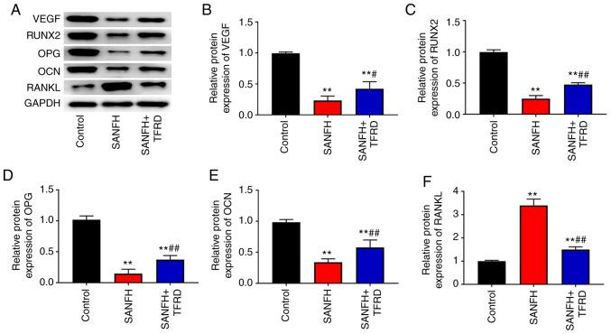 TFRD increased the expression of VEGF, RUNX2, OPG and OCN and decreased the expression of RANKL in the femoral head of SANFH rats. (A) Protein bands of VEGF, RUNX2, OPG, OCN and RANKL. The expression of (B) VEGF, (C) RUNX2, (D) OPG, (E) OCN and (F) RANKL in the femoral head of rats was detected using western blotting. **P