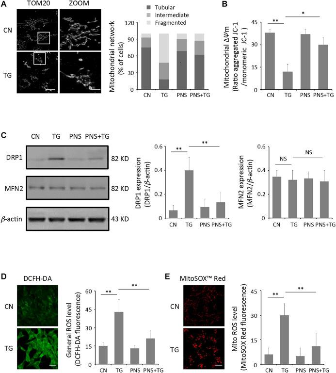 PNS prevents TG-induced mitochondria injury and ROS accumulation. (A) Primary cultured cardiomyocytes, either untreated (CN group) or pretreated with 40 μg/ml PNS for 12 h (PNS group), before addition of 1 μM thapsigargin (TG group or PNS plus TG group) for 12 h were immunofluorescenced with the primary anti-TOM20 antibody and imaged by a laser scanning confocal microscopy. Representative images in CN and TG group. Scale bar: 30 μm; in box: 10 μm. Bar graph shows percentage of cardiomyocytes with tubular, intermediate or fragmented mitochondria in various groups as indicated (80–100 cells). (B) Primary cultured cardiomyocytes treated as in A were stained with JC-1 and analyzed by a plate reader. Bar graph shows the ratio of aggregated JC-1 (red)/monomeric JC-1 (green) as the mitochondrial membrane potential (Δ ψ m) (Mean ± SEM; 80–100 cells; * p