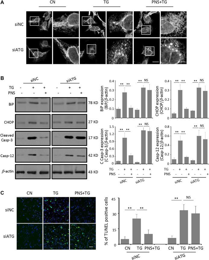 Inhibition of autophagy abolishes PNS protection on TG-induced ER stress response and associated apoptosis. (A) SiNC or siATG7 transfected H9c2 cells, either untreated (CN group) or pretreated with 40 μg/ml PNS for 12 h before addition of 1 μM TG (TG group or PNS plus TG group) for 12 h were immunofluorescenced with the primary anti-calnexin antibody and imaged by a laser scanning confocal microscopy. Scale bar: 30 μm; in box: 10 μm. (B) SiNC or siATG7 transfected H9c2 cells, treated as in A, were immunoblotted with the antibodies to BiP, CHOP, Cleaved Caspase-3 and Caspase-12 as well as β -actin. Bands were quantified relative to β -actin by densitometry (Mean ± SEM; ** p