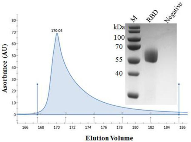 Purification of SARS-CoV-2 RBD protein. Analytical gel filtration profile of SARS-CoV-2 RBD protein with HisTrap TM excel. The 280-nm absorbance curve was shown. SDS-PAGE migration profiles of the sample purified was shown.