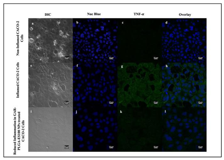 Induction and inhibition of inflammation in CACO-2 cells by confocal microscopy: non-inflamed CACO2 cells ( a – d ); inflamed CACO-2 cells treated with proinflammatory cocktail comprising of IL-6, TNF-α, and LPS at 0.4, 0.9, and 30 μg/mL, respectively, for 3 h used to observe the expression of TNF- α ( e – h ). Reduction in the expression of TNF- α occurred in CACO-2 cells after treatment with GAR-PLGA-ES100 NPs (250 μg/mL) for 48 h ( i – l ) (at scale 25 μm).