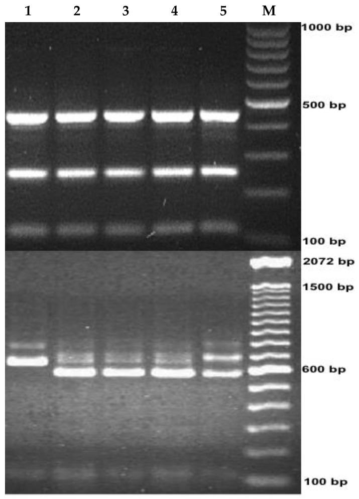 Genotyping of the Cryptosporidium parasites by PCR-RFLP targeting 18S rRNA gene. M, molecular size makers (100 bp). Lane 1: C. parvum ; Lanes 2, 3 and 4: C. hominis and Lane 5: mixed infection with C. hominis and C. parvum . The upper lanes show SspI digestion products showing a molecular size from 111 bp to 449 bp, and the lower lanes show AseI digestion products with molecular size of approximately 104 bp to 628 bp.
