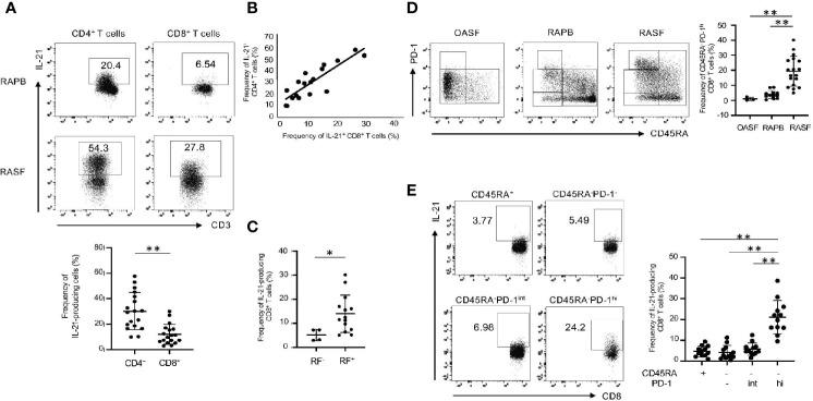 IL-21-producing CD8 + T cells are enriched in memory PD-1 hi fraction in RAPB and RASF. (A) The upper panels show the representative data regarding the percentage of IL-21-producing CD4 + and CD8 + T cells in PB and SF of patients with RA and the lower panel summarizes the results (N=18). (B) Correlation of the percentage of IL-21 + CD4 + T cells with that of IL-21 + CD8 + T cells in RASF (N=18). (C) The panel summarizes the frequency of synovial IL-21-producing CD8 + T cells in RF-positive and -negative patients with RA. (D) The left panels are representative data of the percentage of CD45RA - PD-1 hi fraction among whole CD8 + T cells in OASF (N=3), RAPB (N=12) and RASF (N=18) and right panel summarizes the results. (E) The left panels are representative data of the percentage of IL-21-producing CD8 + T cells among CD45RA + , CD45RA - PD-1 -/low , CD45RA - PD-1 int and CD45RA - PD-1 hi fractions in RASF and the right panel summarizes the results (N=12). * P