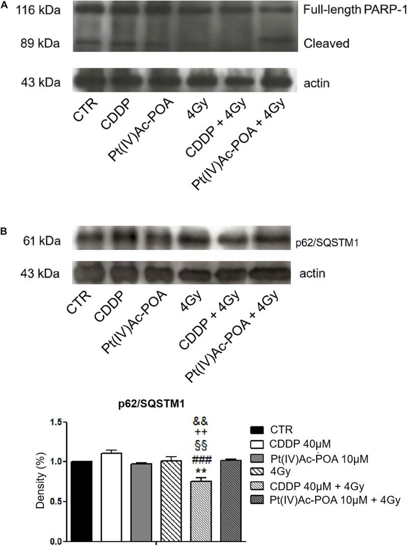(A) Western blotting analysis of full-length poly[ADP-ribose] polymerase 1 (PARP-1, 116 kDa) and cleaved PARP-1 (89 kDa). Representative Western blotting bands showing the expression levels of full-length PARP-1 (116 kDa) and cleaved PARP-1 in the controls, differently treated U251 cells, i.e., after 48-h continuous treatment (CT) with 40 μM cis -dichlorodiammineplatinum (CDDP) or 10 μM ( OC -6-44)-acetatodiamminedichlorido(2-(2-propynyl)octanoato)platinum(IV) [Pt(IV)Ac-POA], after carbon ion irradiation (4 Gy dose) alone, and in combined exposure conditions [40 μM CDDP or 10 μM Pt(IV)Ac-POA 48-h CT + 4 Gy carbon ion irradiation]. The result was quantified from the average of three different samples. The density bands of full-length (116 kDa) and cleaved (89 kDa) PARP-1 were compared to the loading control and actin (43 kDa). (B) Western blotting study of p62/SQSTM1 as a typical marker of autophagy activation. Histograms representing density band quantification of p62/SQSTM1 (61 kDa) in the controls, differently treated U251 cells, i.e., after 48-h CT with 40 μM CDDP or 10 μM Pt(IV)Ac-POA, after carbon ion radiation (4 Gy dose) alone, and in combined exposure conditions [40 μM CDDP or 10 μM Pt(IV)Ac-POA 48-h CT + 4 Gy carbon ion radiation]. The means, obtained from three independent experiments, have been quantified and compared to the loading control and actin (43 kDa). Statistical significance calculated as follows: * control vs . CDDP + 4 Gy carbon ion radiation; # CDDP vs . CDDP + 4 Gy carbon ion radiation; § Pt(IV)Ac-POA vs . CDDP + 4 Gy carbon ion radiation; + 4 Gy carbon ion radiation alone vs . CDDP + 4 Gy carbon ion radiation; CDDP + 4 Gy carbon ion radiation vs . Pt(IV)Ac-POA + 4 Gy carbon ion radiation. ** p