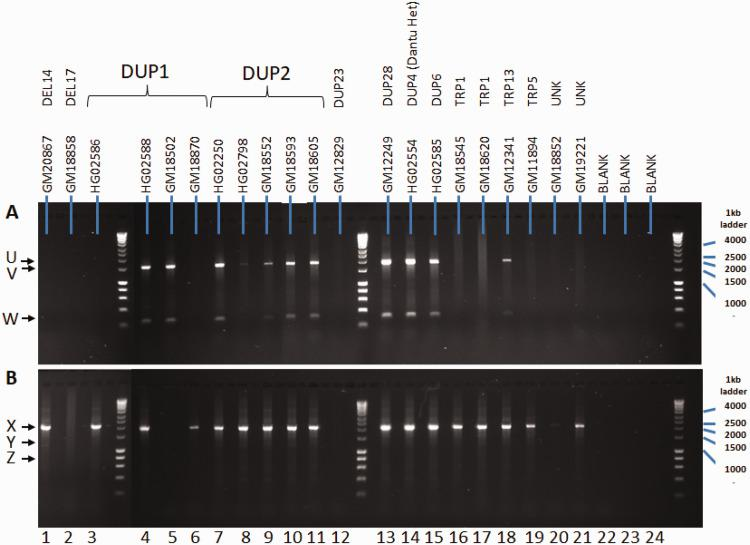 GYPB DEL1 (a) and DEL2 (b) assays on cell lines with known GYP states other than GYPB DEL1 and DEL2. PCR using the GYPB DEL1 (a) or DEL2 (b) primers was carried out on the samples followed by AciI or BsrBI restriction enzyme digestion, respectively. Lanes 22–24 are negative control wells. (a) DEL1 assay; 1.9 kb (V) and 0.8 kb (W) identify the bands expected for a non-DEL1 sample, and 2.2 kb (U) identifies the presence of GYPB DEL1. (b) GYPB DEL2 assay; 2.1 kb (X) band identifies a non-DEL2 sample, and the 1.3 kb (Y) plus 0.8 kb (Z) bands identify the presence of GYPB DEL2. See also Figure 4 . Sample designations identified from Leffler et al. 9
