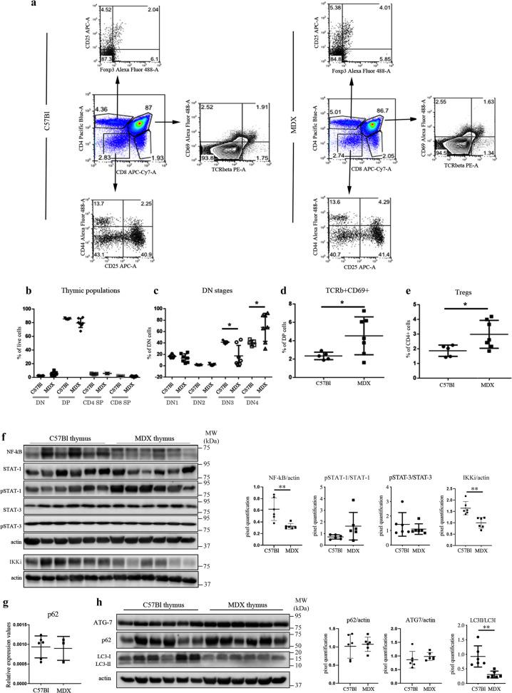 Cellularity, NF-kB/STATs expression, and autophagy in thymus of C57Bl and mdx mice. FACS analysis of thymus homogenate from mdx and C57Bl mice at 8 weeks of age demonstrates no significant alteration of T cells ( a , b ), and few differences in CD4−CD8−DN stages, in particular DN3 (CD44−CD25+) and DN4 (CD44+CD25+) ( c ). The number of TCRβ+CD69+ cells ( d ) and of Foxp3+CD25+ cells ( e ) was significantly increased in thymus of mdx mice. Cropped image of a representative WB and densitometric analysis revealed a downregulation of NF-kB, IKKi, and STAT3 in mdx thymus ( f ). RT-qPCR of p62 expression is shown in g . Autophagy markers such as Atg7, p62 and LC3 were also assessed by WB analysis. Representative WB image and quantification of LC3-II/LC3-I showed the impairment of the autophagic flux ( h ). All protein expression was normalized on actin, as a loading control. The comparisons between the averages of the groups were evaluated using two-sided Student's t -test. c * p = 0.0177 (DN3), * p = 0.0351 (DN4). d * p = 0.043. e * p = 0.0332. f ** p = 0.0048 (NF-κB), ** p = 0.0018 (IKKi). h ** p = 0.0026. Data are presented as mean ± SD of three independent experiments with n = 7 (mdx) and n = 5 (C57Bl) mice ( a – e ); n = 6 mice/group ( f , h ); n = 3 mice (mdx) and n = 6 mice (C57Bl) ( g ). Source data are provided as a Source Data file.