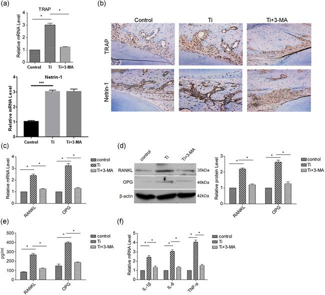 Blocking of autophagy inhibits wear particle induced osteoclastogenesis in vivo. The air pouch mold was established, and Ti wear particles with or without 3‐MA were injected in the air pouch. (a) After 7 days, the implanted bones were harvested to detect the mRNA expression of TRAP and Netrin‐1 with real‐time PCR. (b) The harvested bones were also subjected to immunohistochemical staining to detect the expression of TRAP and Netrin‐1. (c) The mRNA expression of RANKL and OPG in pouch wall tissues was detected by real‐time PCR. (d) The protein expression of RANKL and OPG in pouch wall tissues was detected by western blotting. (e) The serum levels of RANKL and OPG were detected by ELISA. The mRNA expression of proinflammatory factors (IL‐1β, IL‐6, and TNF‐α) in pouch wall tissues was measured to assess the degree of inflammation. Data represent mean ± SEM; n = 5 (* p