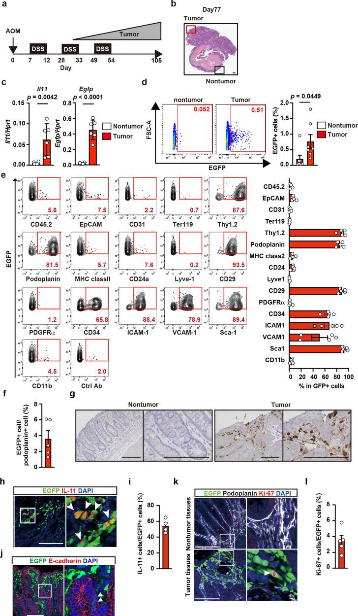 Characterization of IL-11 + cells in CAC using Il11-Egfp reporter mice. a Protocol for induction of AOM/DSS-induced CAC in mice. Il11-Egfp reporter mice were intraperitoneally injected with AOM on day 0, followed by repeated DSS administration. Colorectal cancer gradually develops ~30 days after AOM injection. Unless otherwise indicated, the following experiments used tumor and nontumor tissues collected on day 98–105 after AOM/DSS treatment. b Representative image of tumor and adjacent nontumor tissues in the mouse colon on day 77 after AOM injection. Colon sections were stained with hematoxylin eosin (H E) ( n = 20 mice). Scale bar, 200 μm. c mRNA samples from tumor and nontumor tissues were analyzed using qPCR to determine the expression levels of the indicated genes. Results are mean ± SEM ( n = 6 mice). Results are representative of two independent experiments. d – f From colonic tumor tissues of Il11-Egfp reporter mice, single-cell suspensions were prepared, and percentages of IL-11 + (EGFP + ) cells were determined. Representative flow cytometry images are shown ( d ). Results are mean ± SEM ( n = 7 mice). Cells were stained with the indicated antibodies, and marker expression on EGFP + cells was analyzed by flow cytometry. A representative dot plot from three independent experiments shows the percentages of EGFP + cells expressing each marker ( n = 5 mice except for CD34 where n = 4 mice) ( e ). Percentages of EGFP + cells among podoplanin + cells ( f ). Results are mean ± SEM ( n = 5 mice). g Nontumor and tumor tissue sections were stained with anti-GFP antibody ( n = 4 mice). Scale bars, 100 μm. h – l Tumor sections were stained with anti-GFP along with anti-IL-11 ( h ) ( n = 4 mice), anti-E-cadherin ( j ) ( n = 4 mice), or anti-Ki67 ( k ) and anti-podoplanin ( k ) antibodies ( n = 5 mice). The right-hand panels show enlarged images of white boxes from the left-hand panels. White arrowheads indicate EGFP + cells expressing the respective markers shown in r