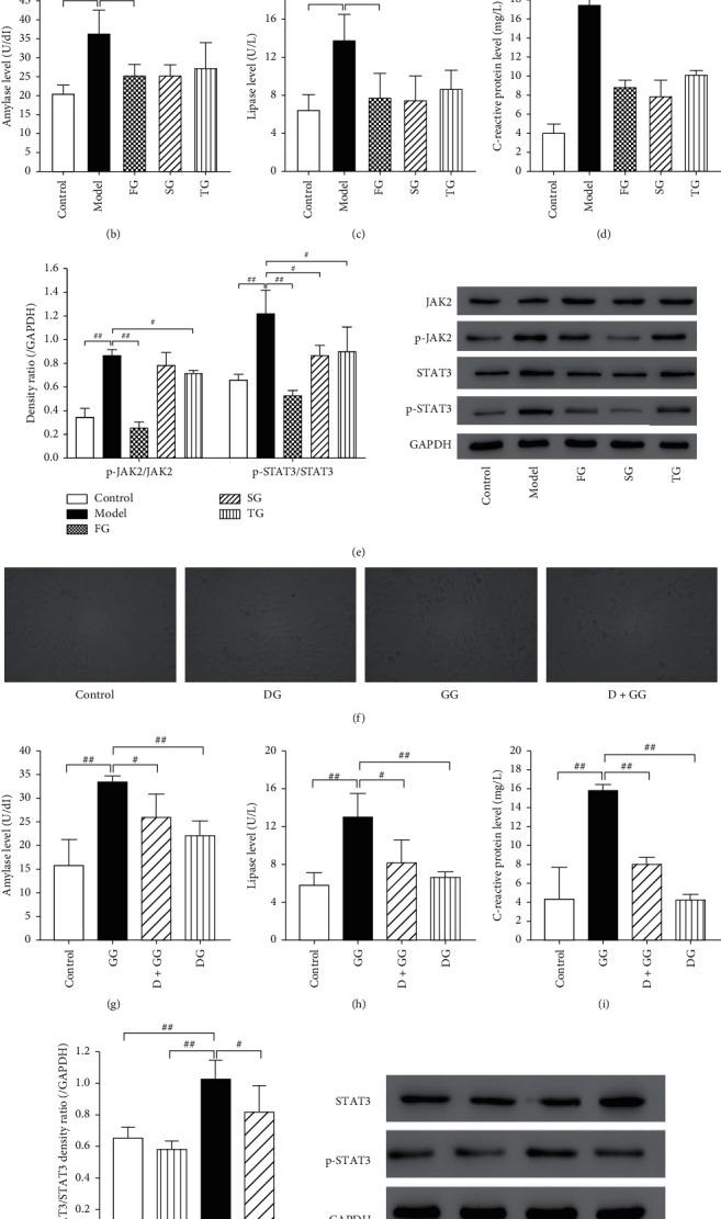 The amelioration of DCQD was mediated by suppressing the activation of JAK2/STAT3 signaling pathway. (a and f) The morphological changes of cells were assessed by using an optical microscope (400×). The releases of amylase, lipase, and C-reactive protein were detected by amylase assay kit (b and g), lipase assay kit (c and h), and C-reactive protein assay kit (d and i), respectively. (e) Western blot was performed to detect the protein level of JAK2, p-JAK2, STAT3, and p-STAT3. GAPDH was as the loading control for band density normalization. (j) Western blot was performed to detect the protein level of STAT3 and p-STAT3. GAPDH was as the loading control for band density normalization. Data are presented as the means ± SD, n = 3. Micrographs from one representative experiment out of three independent experiments are shown. All bar graphics: # P
