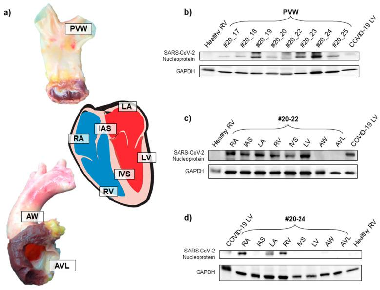 <t>SARS-CoV-2</t> nucleoprotein was present in several tissues of COVID-19-negative donors. ( a ) Representative images of donor tissue specimens analyzed by Western blot. Labels in the images show the location of tissue sampling in each organ/tissue. ( b ) Western blot analysis for SARS-CoV-2 nucleoprotein on total protein extracts from tissues of 8 different deceased donor PVW specimens, RV specimens from healthy donors (collected prior to COVID-19 pandemic), and LV specimen from COVID-19-positive deceased patient. GAPDH was used as a loading control protein. ( c , d ) Western blot analysis for SARS-CoV-2 nucleoprotein on total protein extracts from different cardiac and valve tissues of 2 deceased donors (#20-22 and #20-24) positive for SARS-CoV-2 serological assay. RV specimen from a healthy donor (collected prior to COVID-19 pandemic) and LV specimen from a COVID-19-positive deceased patient were used as controls. GAPDH was used as the loading control protein. PVW: pulmonary vein wall; RA: right atrium; IAS: interatrial septum; LA: left atrium; RV: right ventricle; IVS: interventricular septum; LV: left ventricle; AW: aortic wall; AVL: aortic valve leaflet.